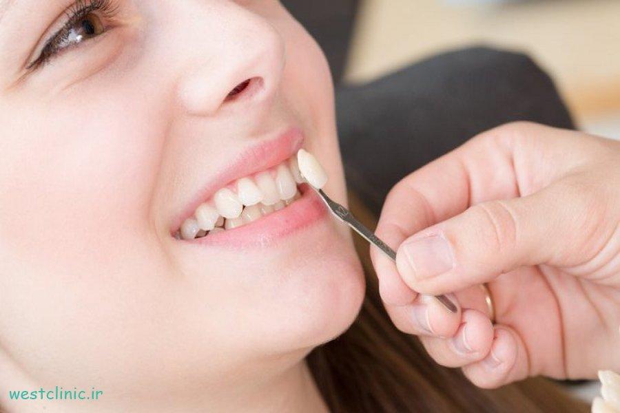 روکشهای دندانی و دلایـل نیـاز به آنها